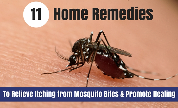 11 Remedies for Mosquito Bites